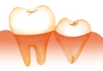 歯肉から大部分が露出している親知らず