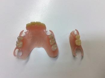新素材義歯